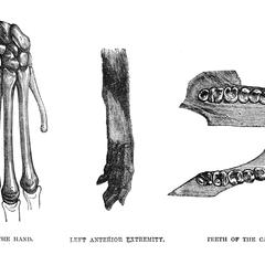 Bones of the Hand, Left Anterior, and Teeth of the Cayou