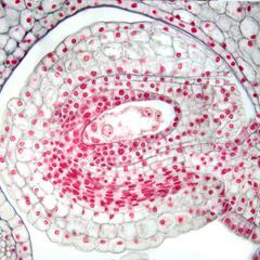 Mature Lilium embryo sac