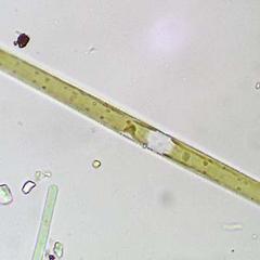 Diatoms - Synhedra, a pennate diatom - girdle view