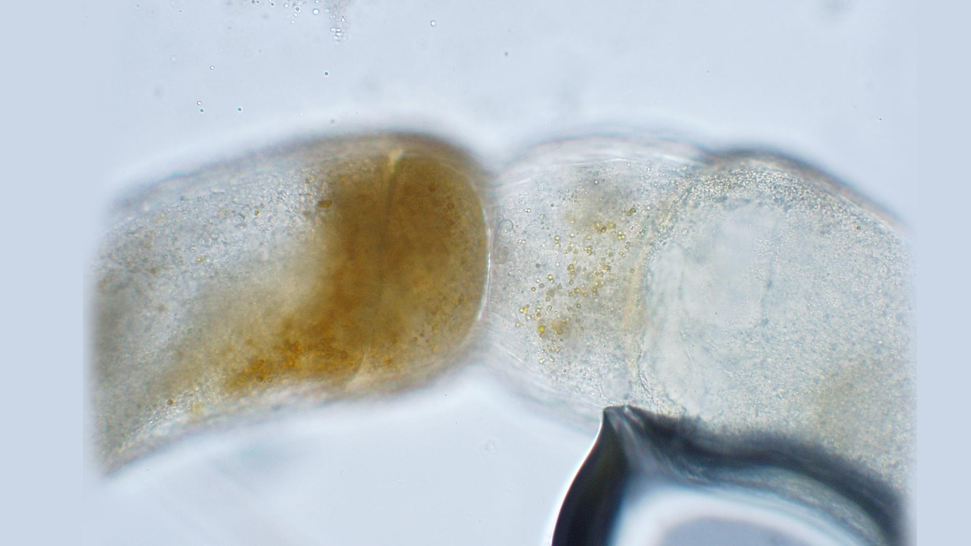Gametangia in culture of Phycomyces