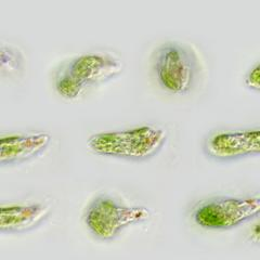 Euglena - a composite of different views of the same cell illustrating euglenoid motion- 100x objective DIC illumination