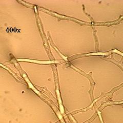 Coenocytic hyphae of Rhizopus
