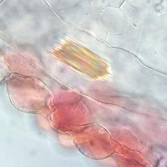 Packet of raphides in an enlarged Impatiens petal cell - 100 x objective