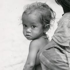Undernourished child in a village in Houei Kong Cluster in Attapu Province
