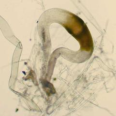Progametangia of Phycomyces