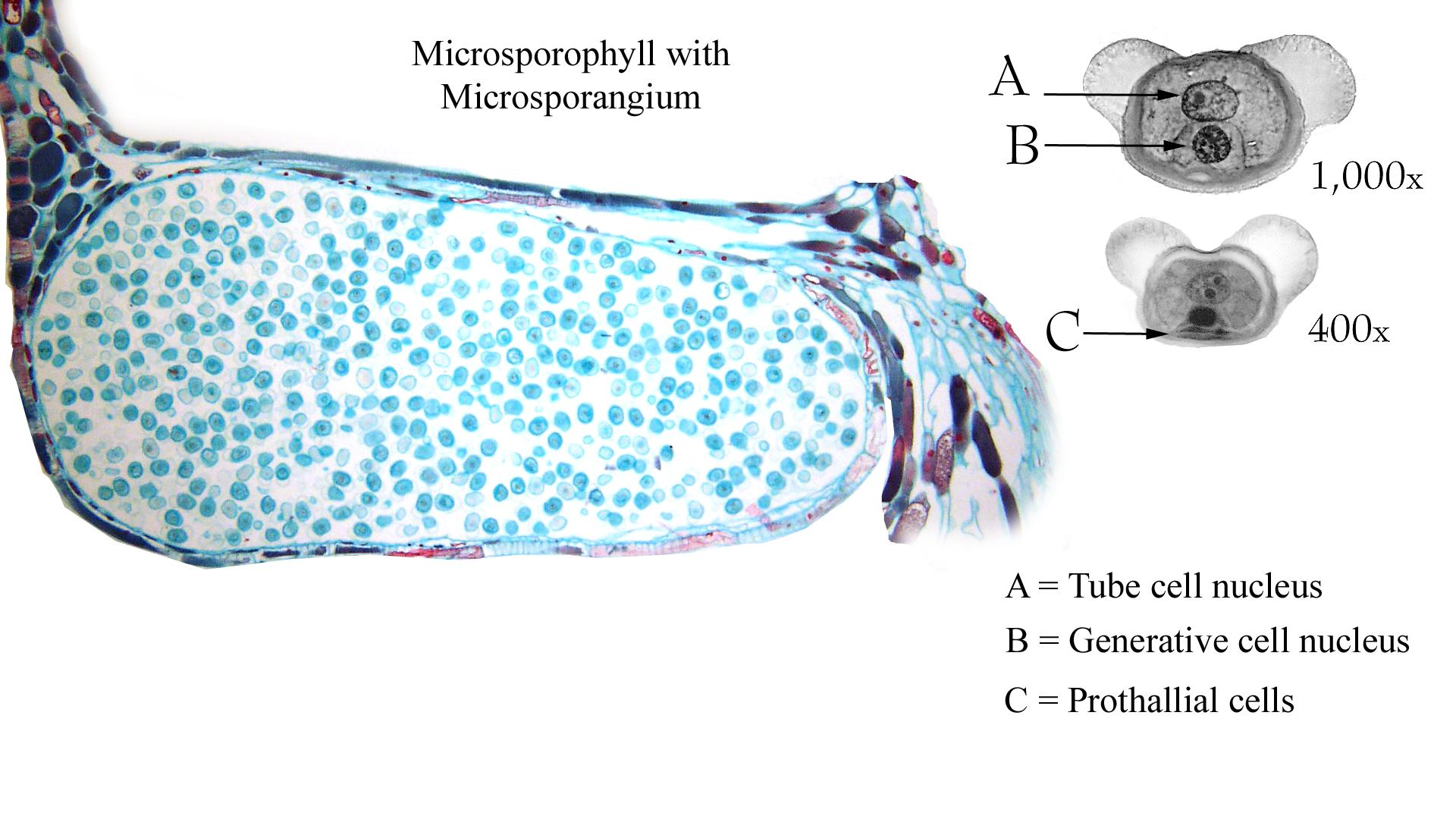 Composite of pine pollen with all cells visible and longitudinal section of a microsporophyll