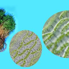 Sphagnum moss - composite of habit and photomicrograph of leaf cells