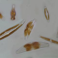 Diatoms - composite of some fresh water diatoms common to Wisconsin