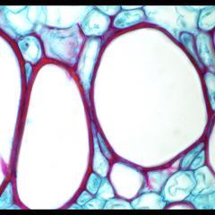 Xylem in a cross section of Cucurbita stem - prepared slide 100x objective