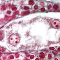 Mature embryo sac of Lilium