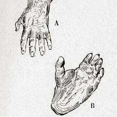 Fig. 8--A. Main; B. Pied de Gorille