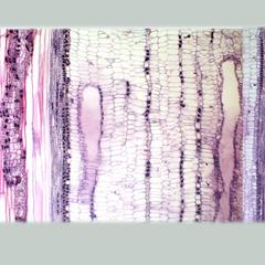 Composite of images showing an entire transect of a longitudinal section of of a two-year old Tilia stem