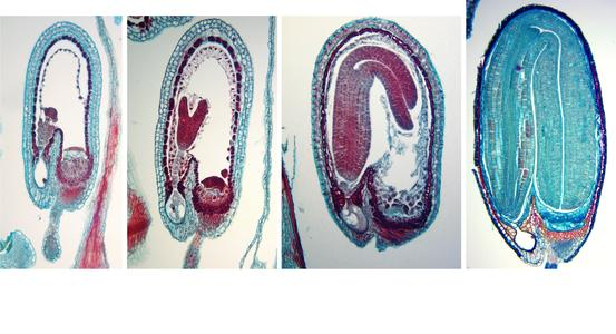 Composite of four stages of embryogenesis in Capsella