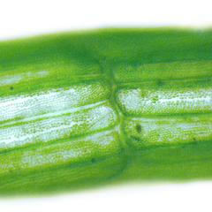Chara - chloroplasts in corticating cells