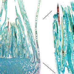 Mnium moss - longitudinal section through the apex of a female gametophyte - composite of the whole section with detail of an archegonium