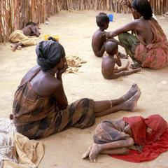 Starving Children in Refugee Compound