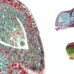 Ovunle, seed scale complex in longitudinal section, and dissected seed scale showing two ovules