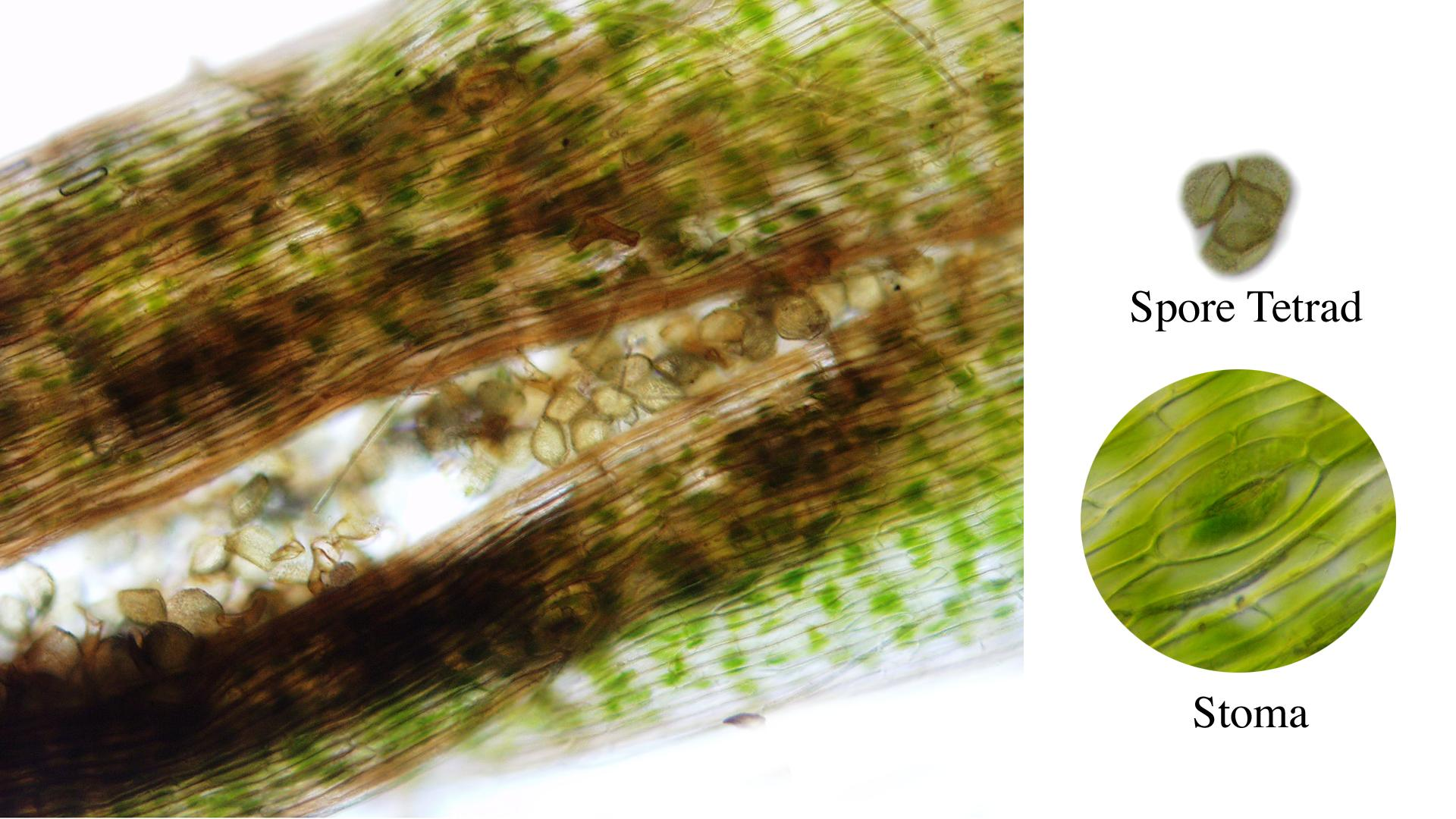 Hornwort - composite of images of the sporophyte : sporangium, tetrad of spores and a stoma