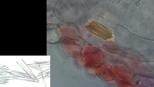 Zebrina leaf tissue with raphides