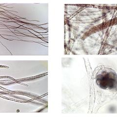 Saprolegnia - composite of coenocytic hyphae, zoosporangium, oogonium with antheridia