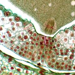 Pine ovule - first mitosis of zygote in metaphase