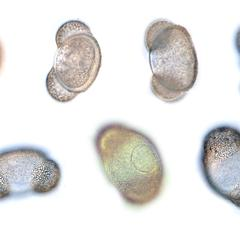 Several views, at different planes of focus, of a live pine pollen grain - 100x objective