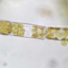 Melosira, a centric diatom, undergoing cytokinesis