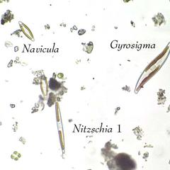 Diatoms - view of three different pennate diatoms