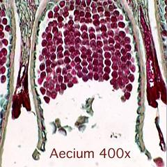Berberis vulgaris - aecium in cross section of an infected leaf