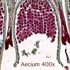 Berberis vulgaris - aecium in cross section of an infected leaf