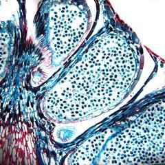 Microsporangium of pine