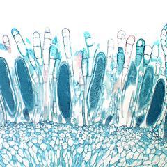 Longitudinal section of antheridia of Mnium moss