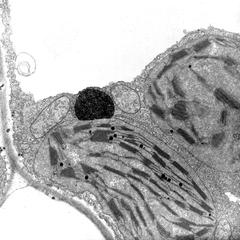 Glyoxysome with a chloroplast