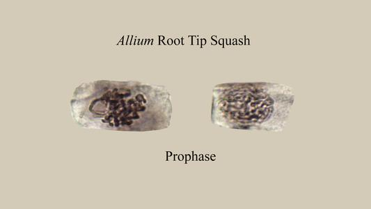 Prophase from a Narcissus root squash