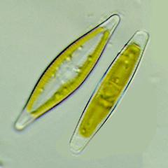 Pennate diatom valve and girdle views