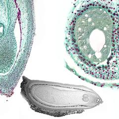 Composite of older pine ovule before fertilization
