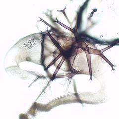 Zygosporangium of Phycomyces