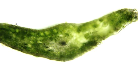 Cross section of a leaf of shining club moss